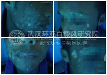 面部白斑 散发性 3个月 发展期
