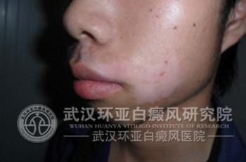 嘴角白斑 21岁 发展期 局限型